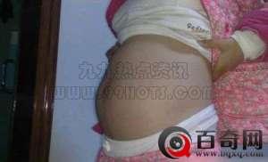 黑龙江女孩怀孕却生下20只老鼠